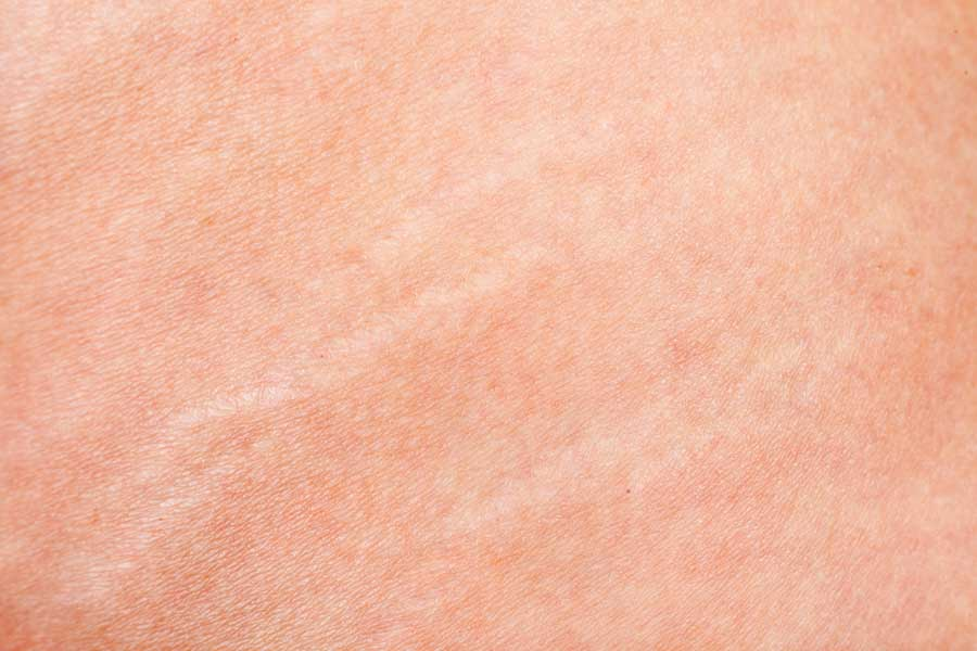 how to stop stretch marks from spreading