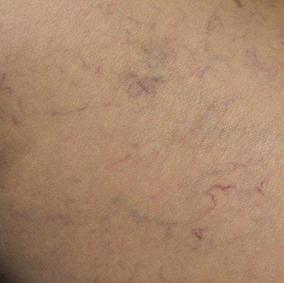 Variclear can help get rid of facial spider veins