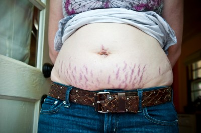 Bad stretch marks? Now what?