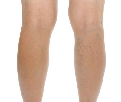 Preventing varicose veins during pregnancy