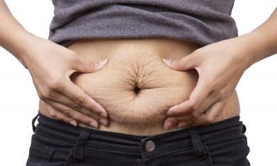 Really bad belly stretch marks? We can help.