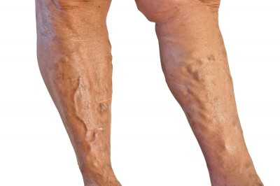 When are varicose veins a cause for concern?