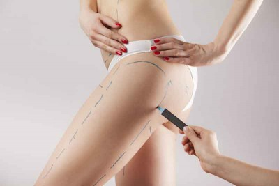 Can liposuction remove cellulite?