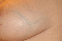 Old varicose veins on breast