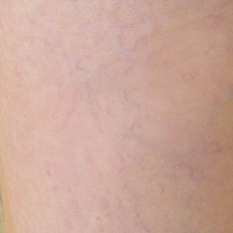 Female: Varicose Veins on Left Calf