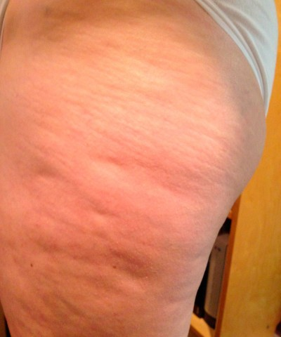 E.M. From New Jersey After Two Weeks With Robelyn's Cellulite Treatment