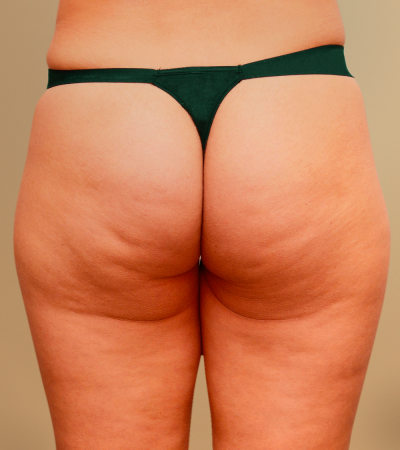 Study Subject #1 - Robelyn's Cellulite Treatment