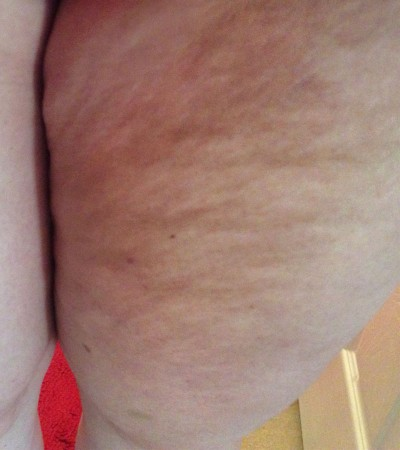 Mid 30-Year Old Female Thigh Cellulite
